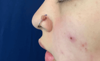 Piercing Cyst Removal Before