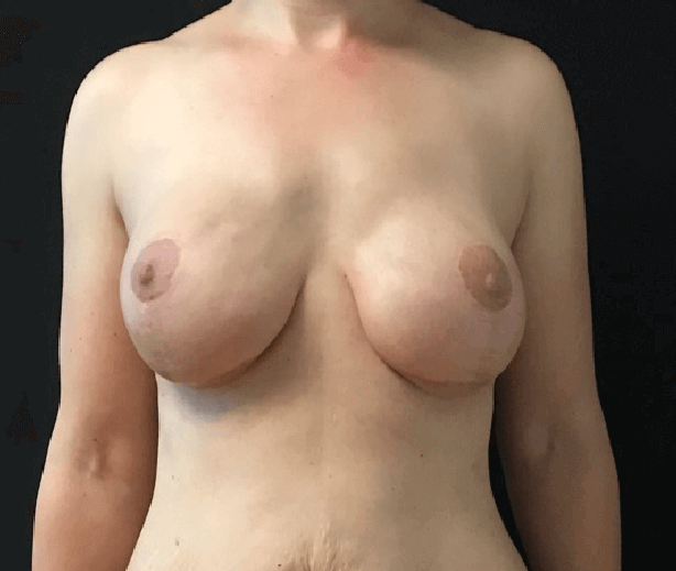 Fat transfer to bilat breast Before