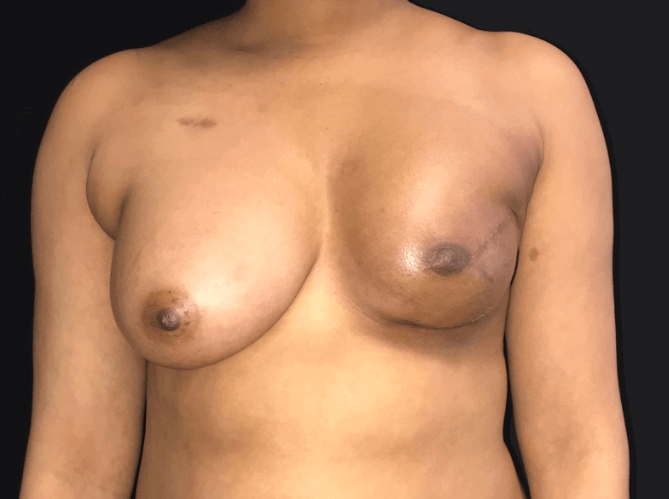 Fat transfer to left breast Before