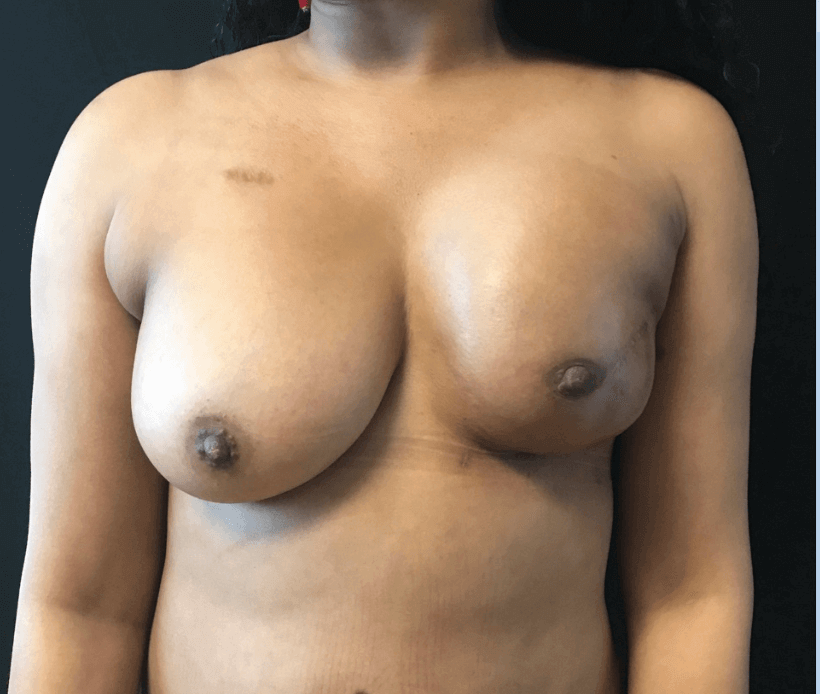 Fat transfer to left breast After