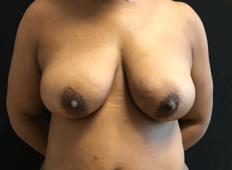 Fat transfer to bilat breast After