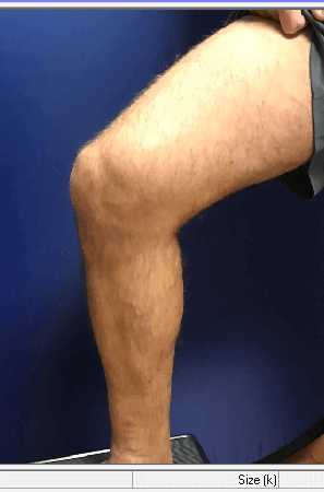 Rt LE bulging varicosities After