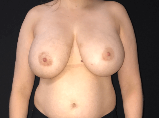 Breast Reduction - Front View Before