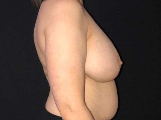 Breast Reduction - Right View Before