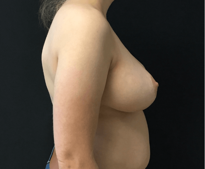 Breast Reduction - Right View After