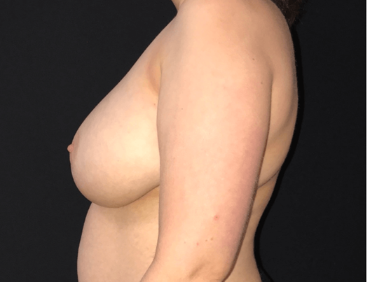 Breast Reduction - Left View Before