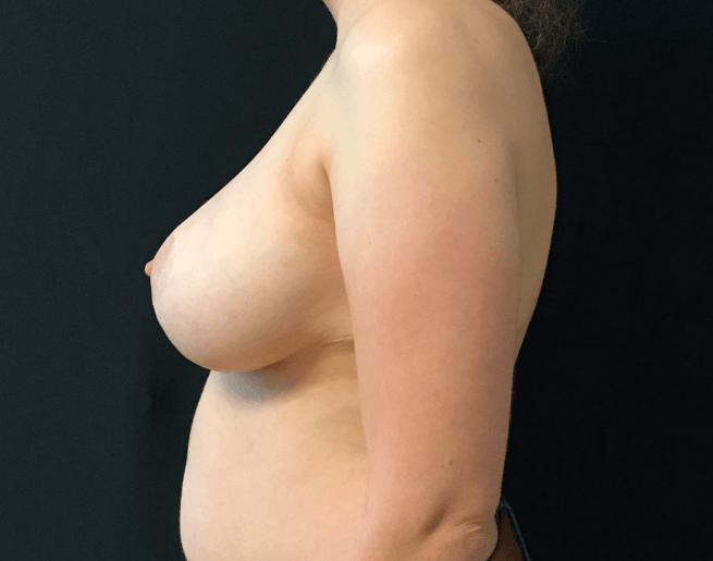Breast Reduction - Left View After