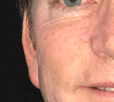 Skin Cancer Surgery After