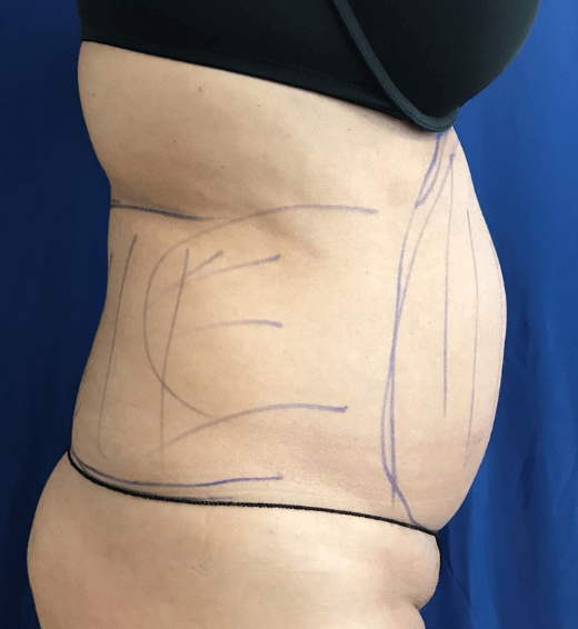 Abdomen lipo Before