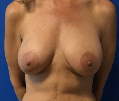 Breast Implant Rupture After