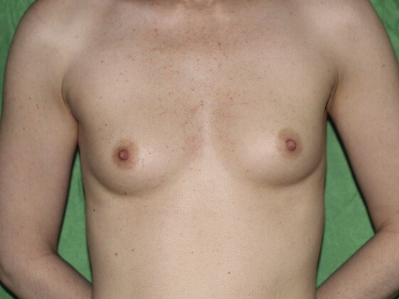 Breast Enlargement! Before