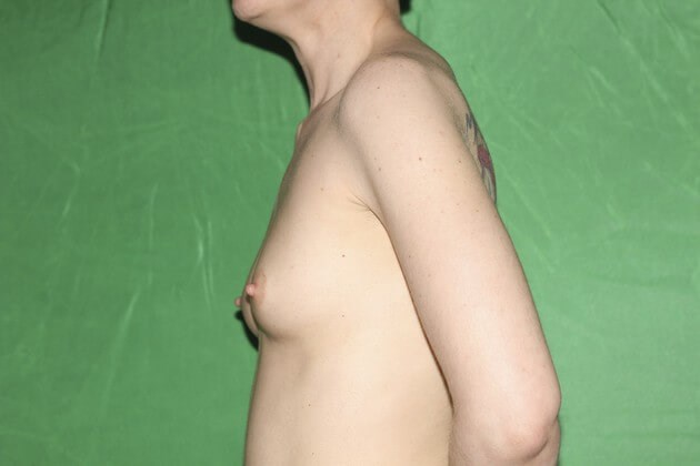 Left Side View of Breast Aug Before