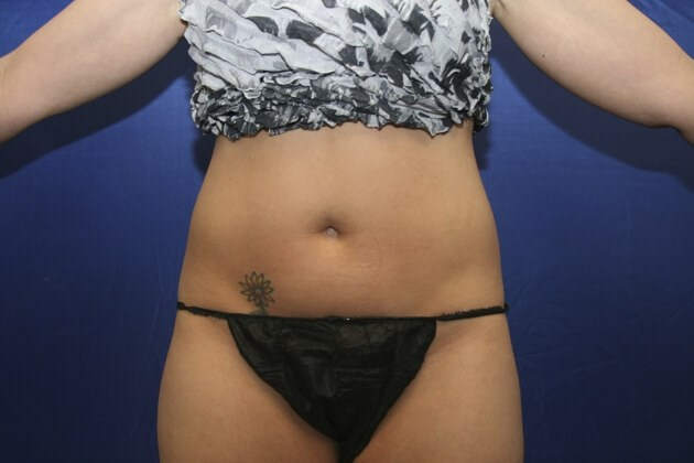 Front View After Coolsculpting Before