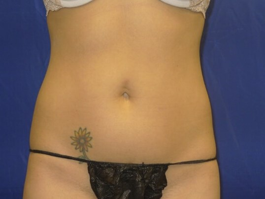 Front View After Coolsculpting After