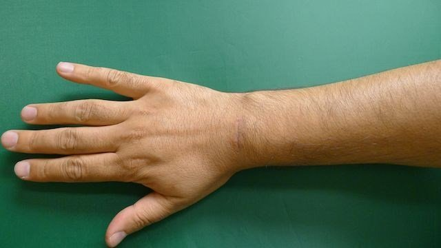 Right Wrist Ganglion After