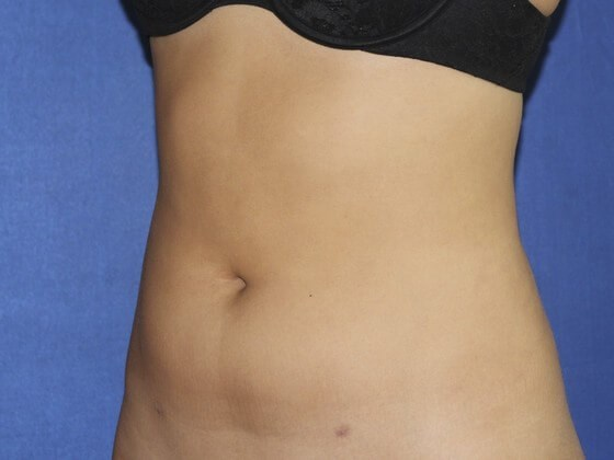 Side View After Liposuction After