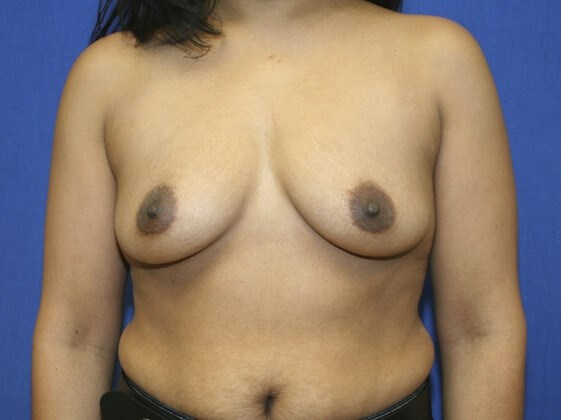 Breasts Regain Shape! Before