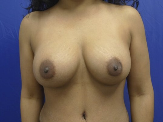Breasts Regain Shape! After