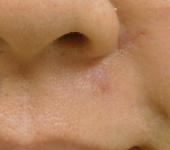 Right Nasal Labial Fold After