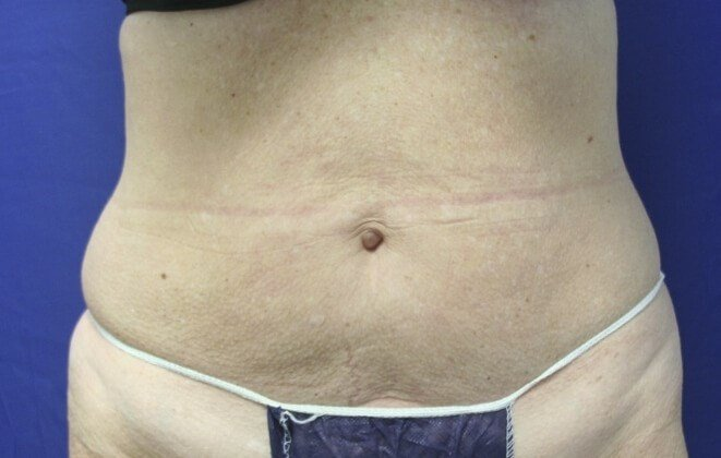 Abdomen Definition After! Before