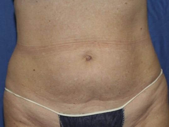 Abdomen Definition After! After