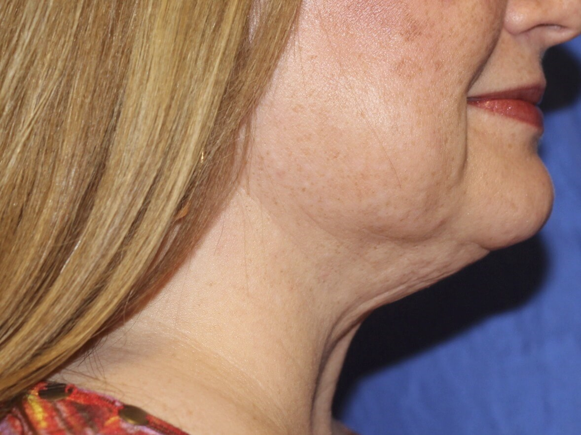 Side View of Neck After