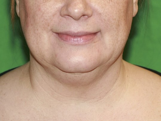 Front View after Liposuction Before