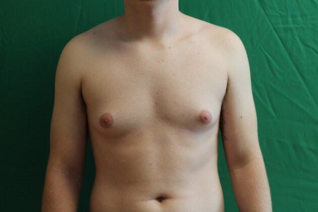 Flatter, Masculine Chest Before