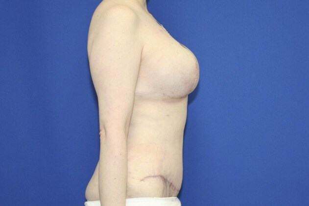 Dramatic Tummy Tuck Results! After