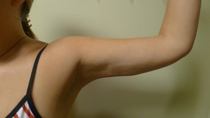 Tighter Arms Can Be Yours Too! After