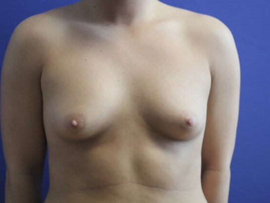 Breasts Shapelier & Rounder Before