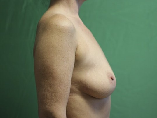 Volume Restored in the Breasts Before
