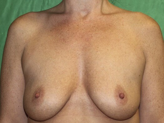 Breasts after Breast Feeding Before