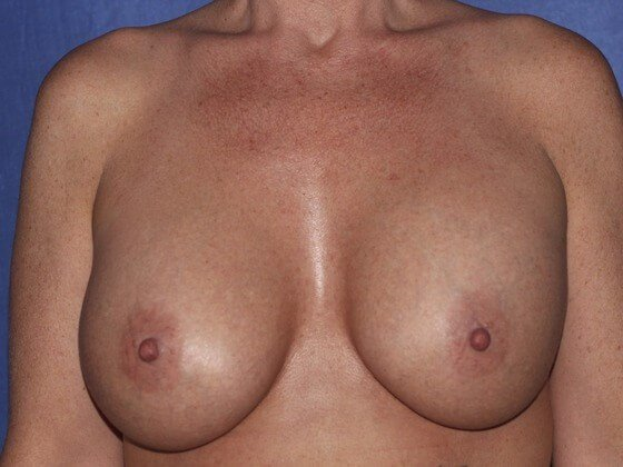 Breasts after Breast Feeding After