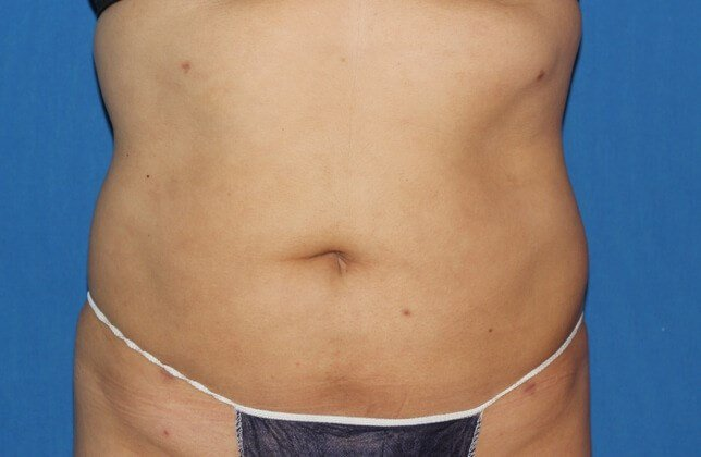 Liposuction of the Abdomen After