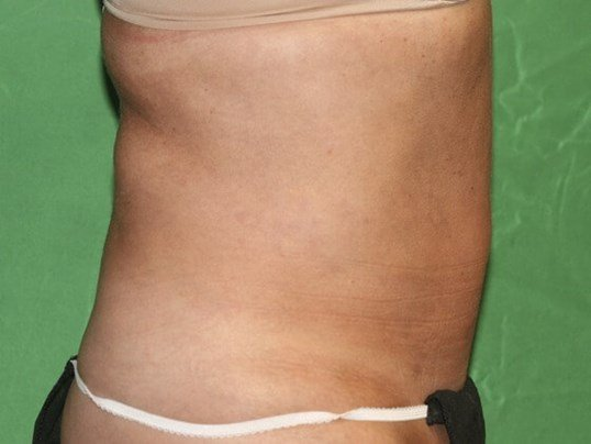 Side View of Abdomen Lipo After