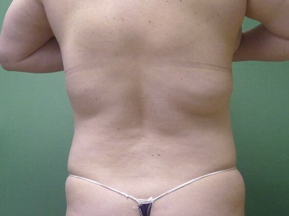 Back Fat Rolls Disappear! Before
