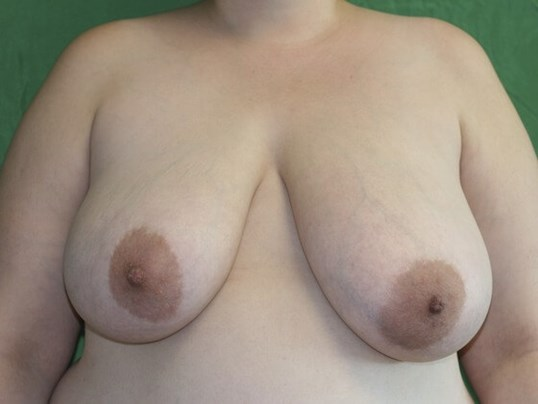 Even Breasts! Before