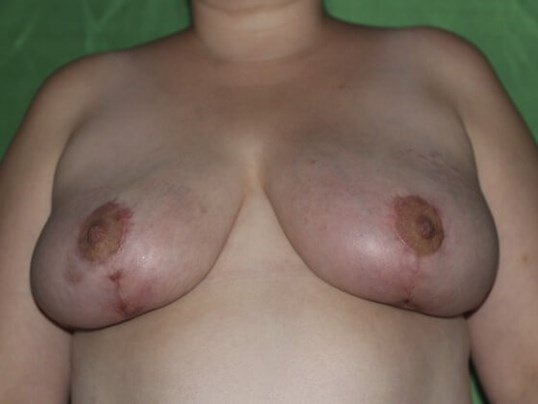 Even Breasts! After