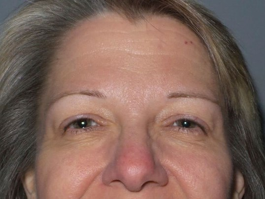 Botox Injections into Glabella, Crows Feet, Forehead and