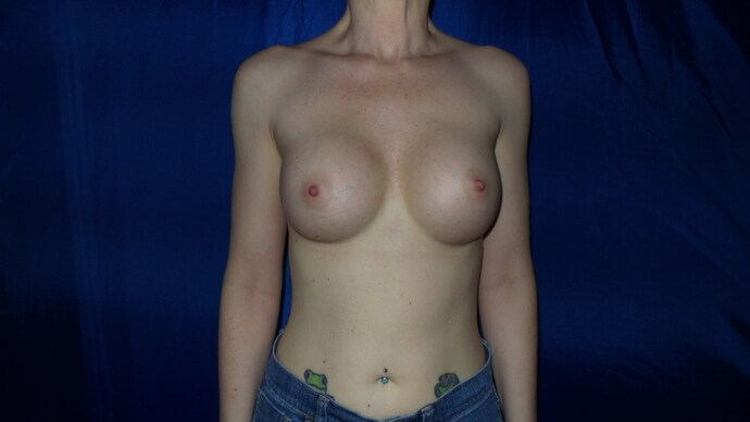 Breast Enlargement! After