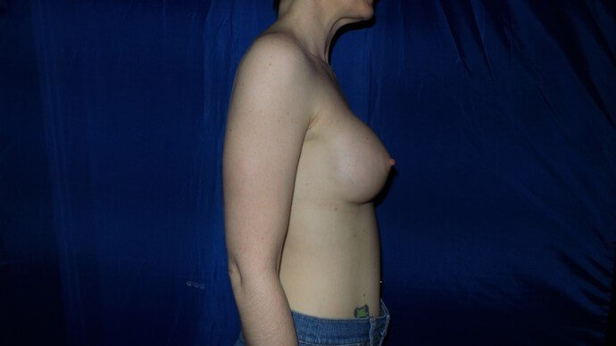Athletic Patient Breast Aug After