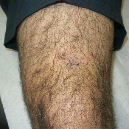 Left Upper Knee Mass After