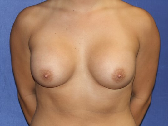 Breasts Shapelier & Rounder After