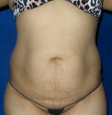 Liposcution Before