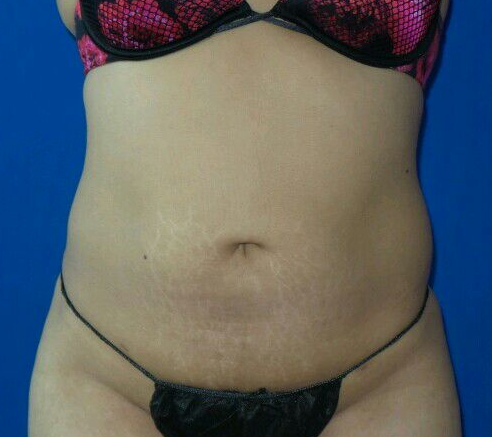 Liposcution After