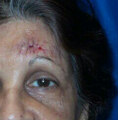 Skin Lesion Excision After