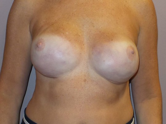 Areola Color Restored Before