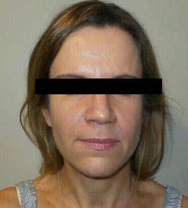 Smooth and Soft with Botox! After