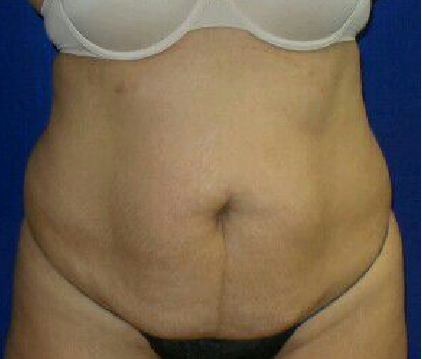 Lipo of abdomen and flanks Before